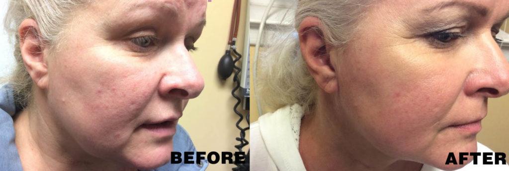 Acne Treatment in Rockville Centre | Long Island Dermatology