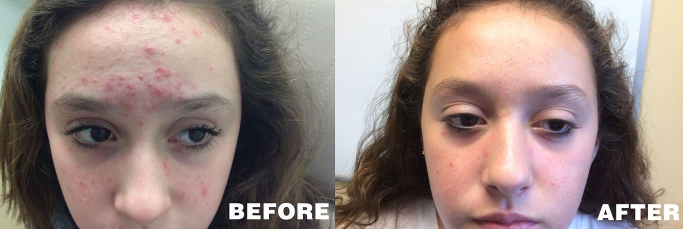 Acne Peel Treatment at Long Island Dermatology