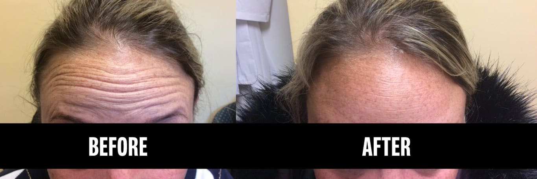 Botox Treatment at Long Island Dermatology
