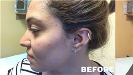 Acne treatment in Rockville Centre & Long Island